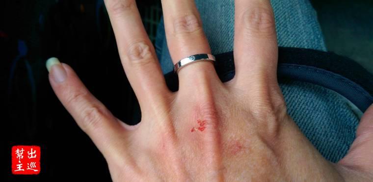 出來才發現雖然戴了手套,手還是刮破皮了